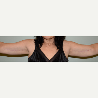 52 year old woman treated with Arm Lift after 3736618