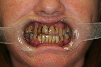 68 year old Female treated with All-on-4 Dental Implant Procedure before 1053465