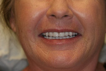 68 year old Female treated with All-on-4 Dental Implant Procedure after 1053465