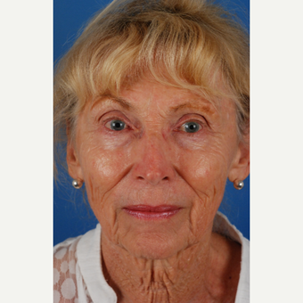 76 year old woman with thin skin treated with Endoscopic Facelift before 3662885
