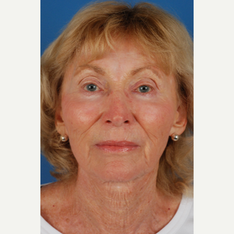 76 year old woman with thin skin treated with Endoscopic Facelift after 3662885