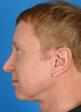 61 year old male treated with Ultherapy for his neck and brows. 1174007