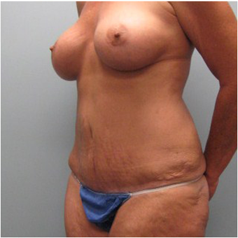 56 year old woman treated with Mommy Makeover after 3680003