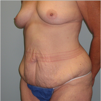 56 year old woman treated with Mommy Makeover before 3680003