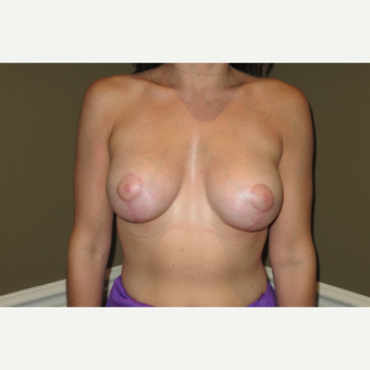 25-34 year old woman treated with Breast Lift after 3427990