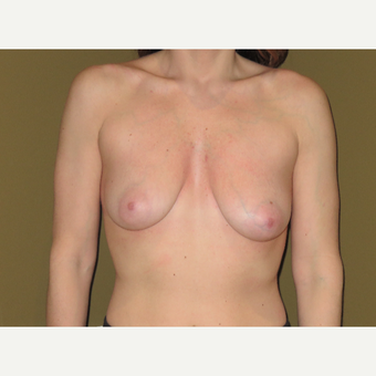 25-34 year old woman treated with Breast Lift before 3427990