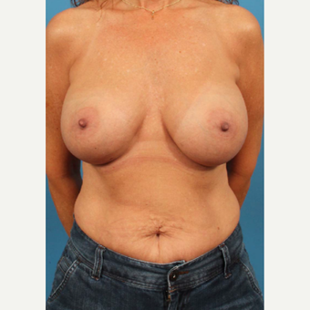 45-54 year old woman treated with Breast Implants after 3244585