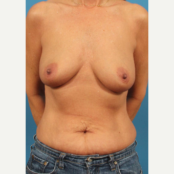45-54 year old woman treated with Breast Implants before 3244585