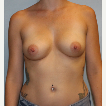 25-34 year old woman treated with Breast Augmentation before 3077123