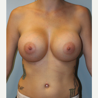 25-34 year old woman treated with Breast Augmentation after 3077123