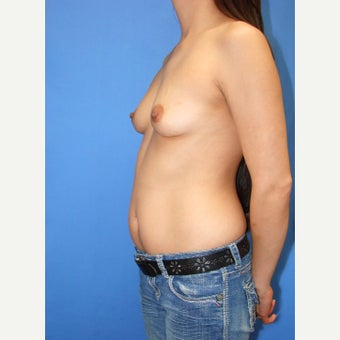 25-34 year old woman treated with Breast Fat Transfer before 2110925
