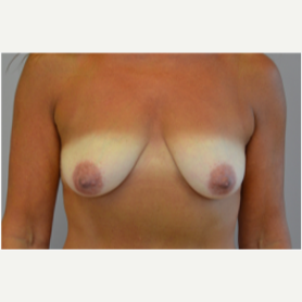 Breast Lift with Implants before 3058190
