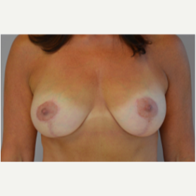 Breast Lift with Implants after 3058190