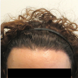 35-44 year old woman treated with Hair Transplant after 1830615