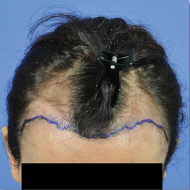 35-44 year old woman treated with Hair Transplant before 1830615