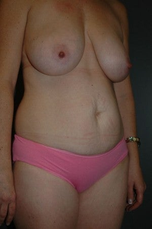 Abdominoplasty and breast lift/small reduction.