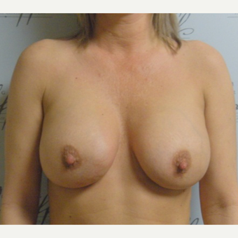 Woman treated with Sientra Breast Implants after 3163529