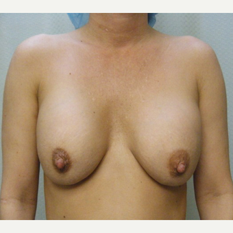 Woman treated with Sientra Breast Implants before 3163529