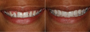 No-Prep Veneers for Peg Laterals