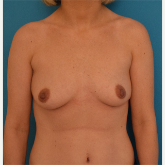 25-34 year old woman treated with Breast Implants before 3042172