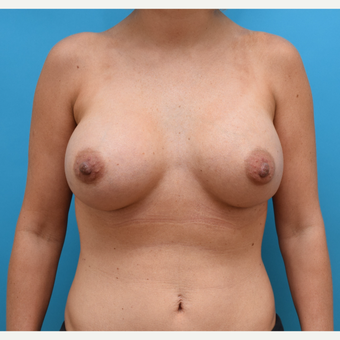 25-34 year old woman treated with Breast Implants after 3042172