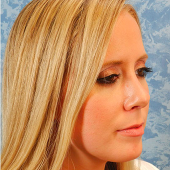 Rhinoplasty after 3124808