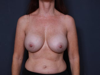 Breast Implant Revision after 776761