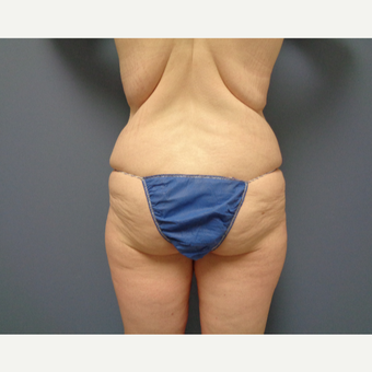 18-24 year old woman treated with Butt Augmentation before 3747129
