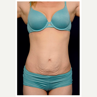 25-34 year old woman treated with Tummy Tuck before 3071066
