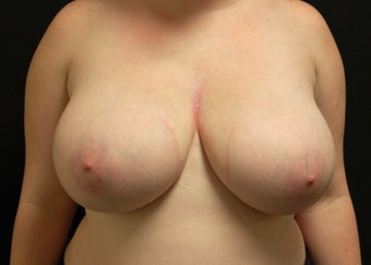 Breast Reduction before 949240