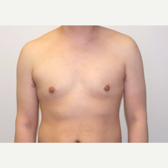 25-34 year old man treated with Male Breast Reduction after 3382532