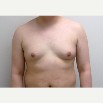 25-34 year old man treated with Male Breast Reduction before 3382532