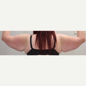 18-24 year old woman treated with Arm Lift before 3065889