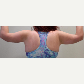 18-24 year old woman treated with Arm Lift after 3065889