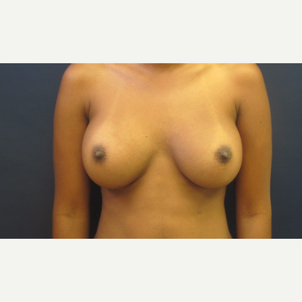 25-34 year old woman treated with Breast Augmentation after 3775429