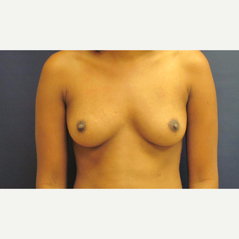 25-34 year old woman treated with Breast Augmentation before 3775429