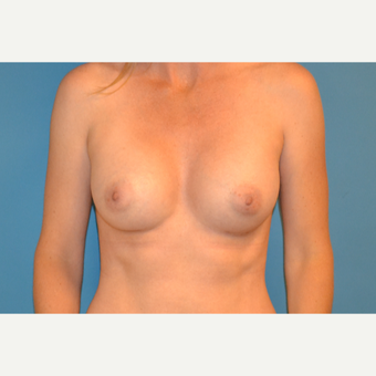 39 year old woman treated with Breast Augmentation after 3106081