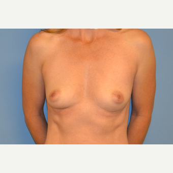 39 year old woman treated with Breast Augmentation before 3106081