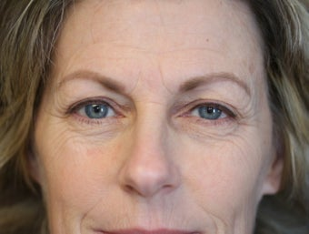 Upper and lower eyelid transconjuctival blepharoplasty before 3071385