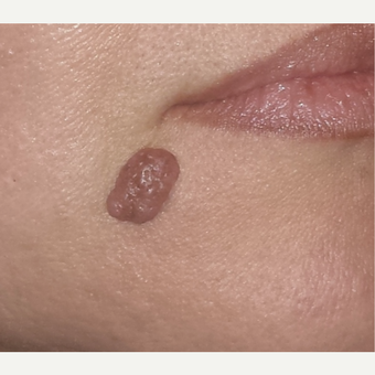 35-44 year old woman treated with Mole Removal before 2917263