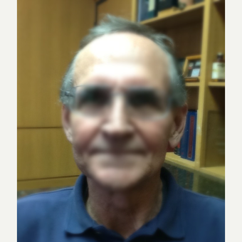 65-74 year old man treated with ARTAS Robotic Hair Transplant before 3066755
