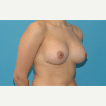 25 year old woman treated with Breast Augmentation after 3283424