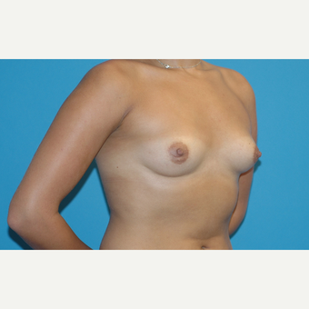 25 year old woman treated with Breast Augmentation before 3283424