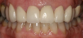 porcelain crowns and porcelain veneers after 312959