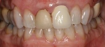 porcelain crowns and porcelain veneers before 312959
