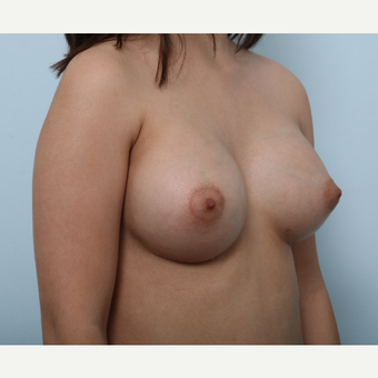 Breast Augmentation after 3425294