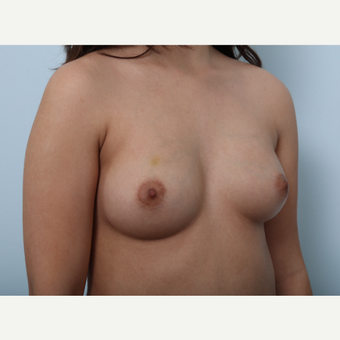 Breast Augmentation before 3425294
