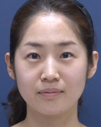 30 year old lady who has undergone forehead & eyebrow lift