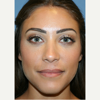 25-34 year old woman treated with Lip Augmentation after 3251742