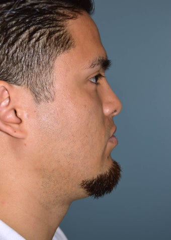 Male Rhinoplasty after 1346653